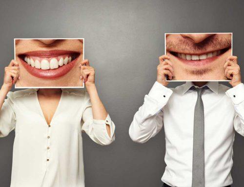 Am I a Good Candidate for Dental Veneers?