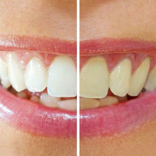 Lafayette Cosmetic Dentistry